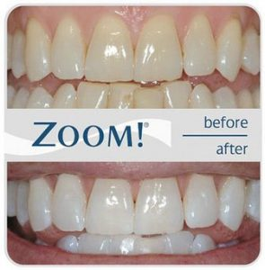 howard-beach-dental-philips-zoom-whitespeed-before-after