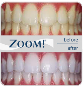 zoom-teeth-whitening-NYC-290x300
